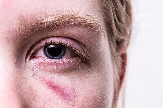 victime agression avocat